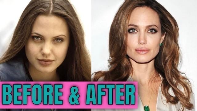 Angelina Jolie: Plastic (Cosmetic) Surgery (2020)