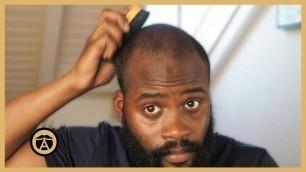 '5 Biggest Mistakes Bald Guys Make | Ben Wilson'
