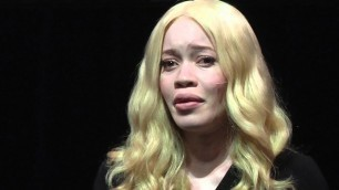 Fashion model with albinism | Diandra Forrest | TEDxFultonStreet